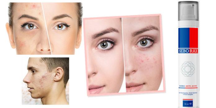 Seborax, siero anti-acne e anti-sebo in eccesso