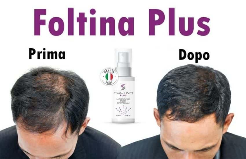 Foltina Plus, prima e dopo